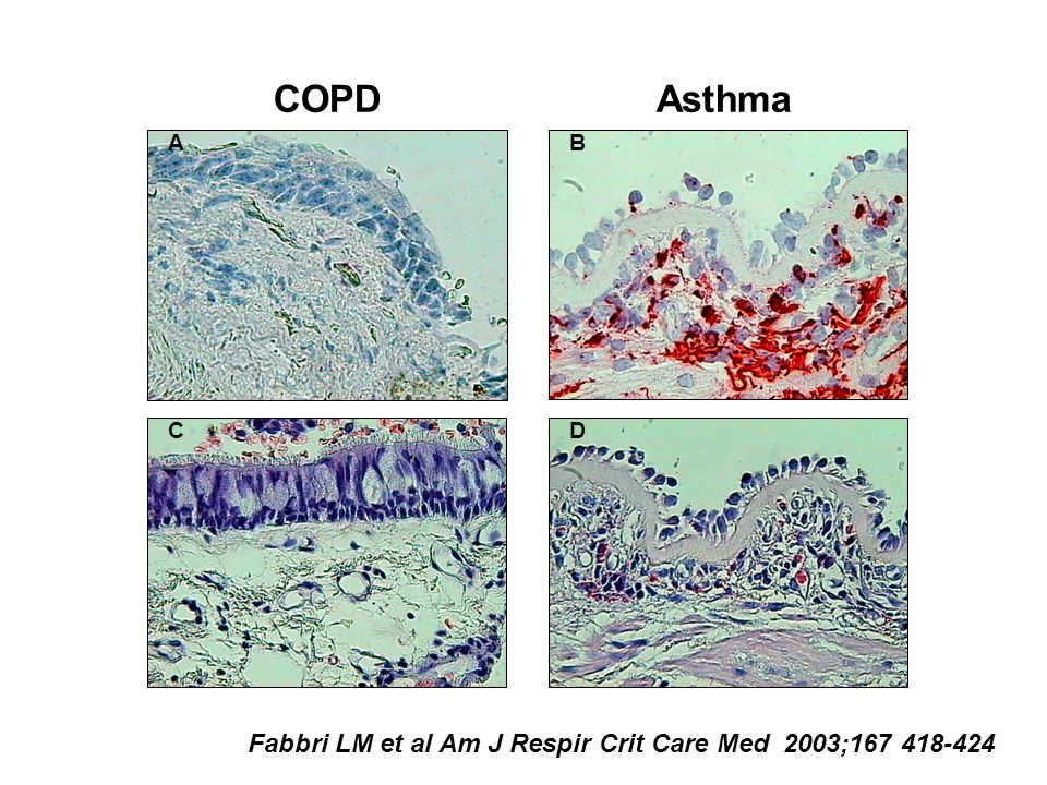 COPD Asthma Fabbri LM et al Am J Respir Crit Care Med 2003;167 418-424