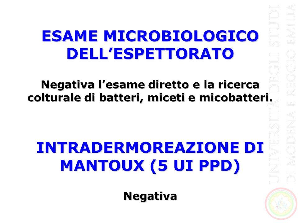 ESAME MICROBIOLOGICO DELL'ESPETTORATO