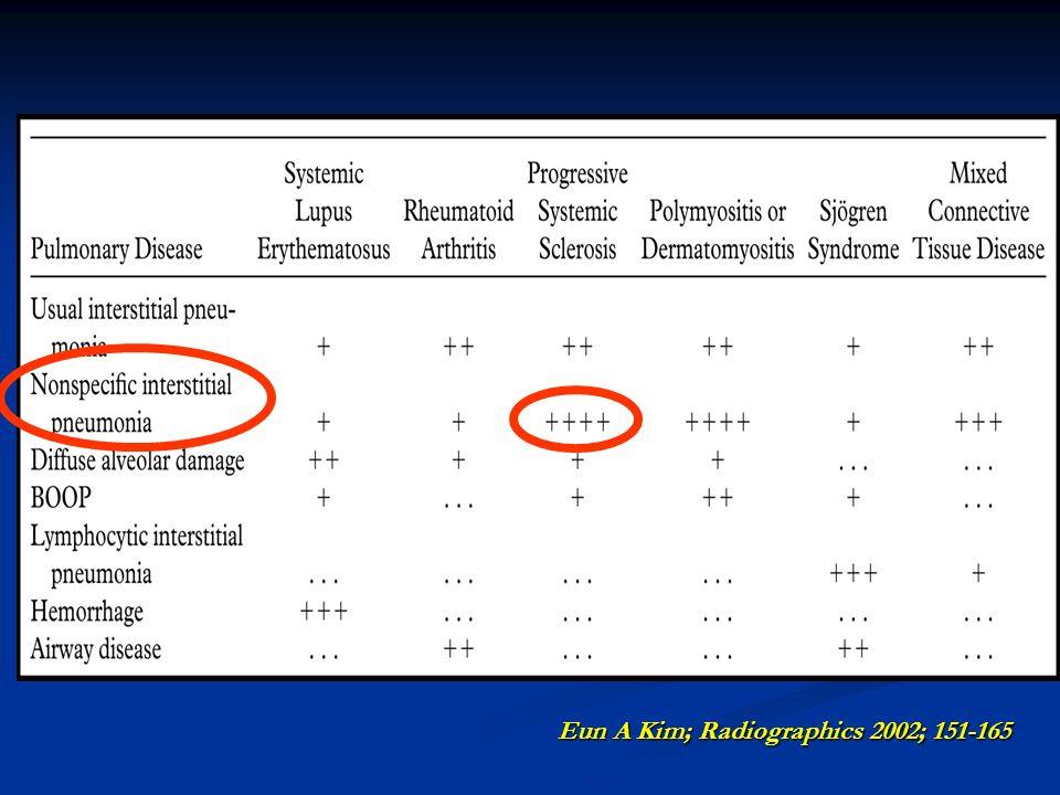 Eun A Kim; Radiographics 2002; 151-165