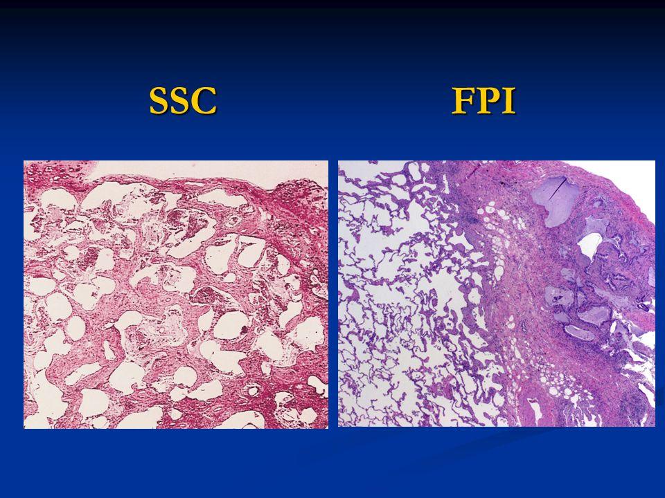 SSC FPI maggiore infiammazione Fibrosi più densa nella FPI