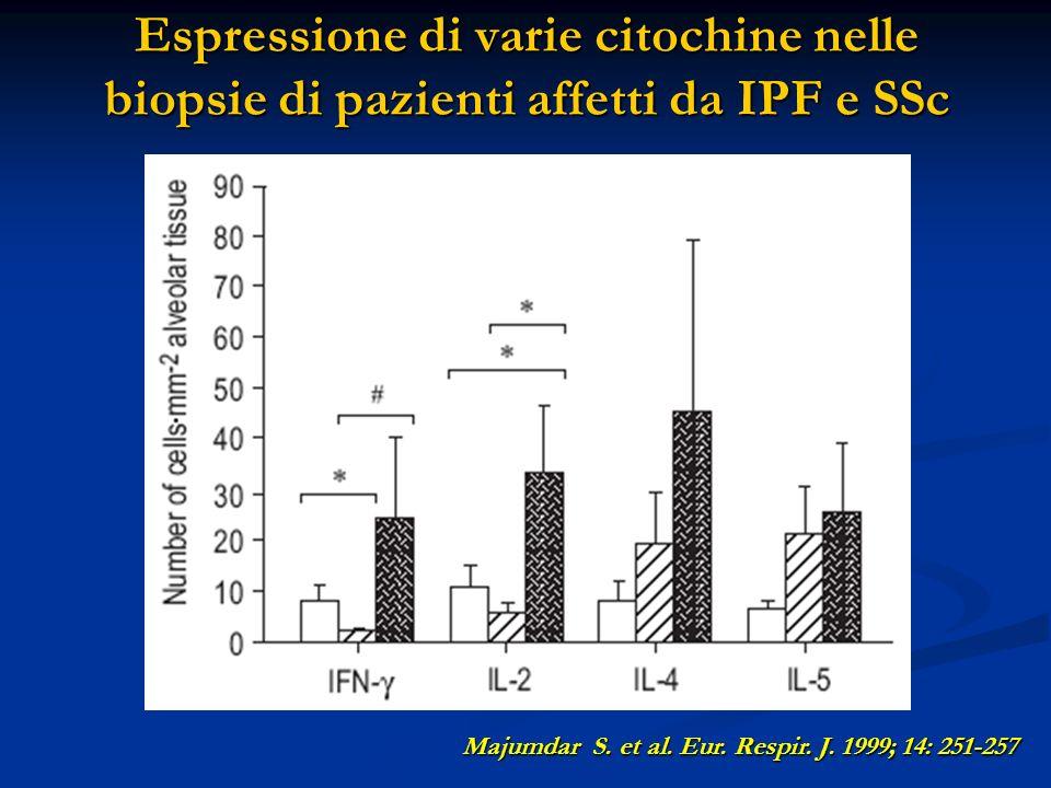 Espressione di varie citochine nelle biopsie di pazienti affetti da IPF e SSc