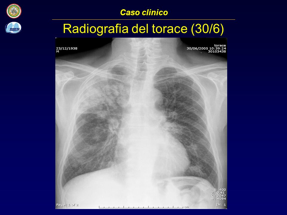 Radiografia del torace (30/6)