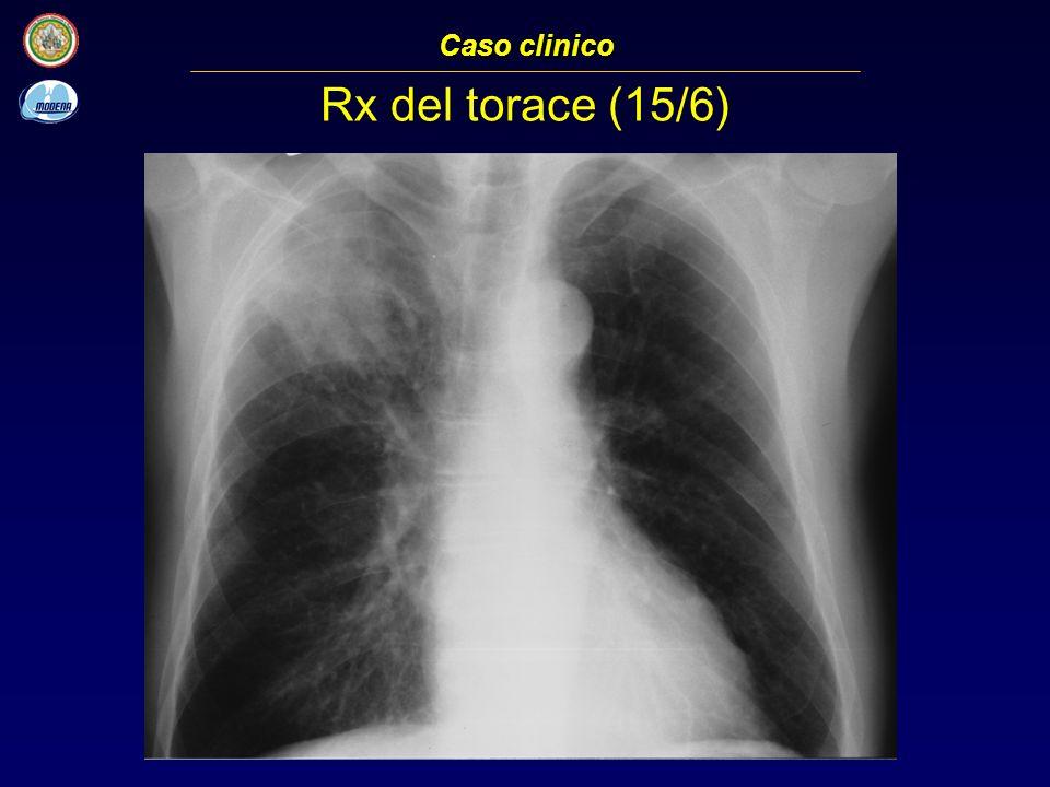Caso clinico Rx del torace (15/6)