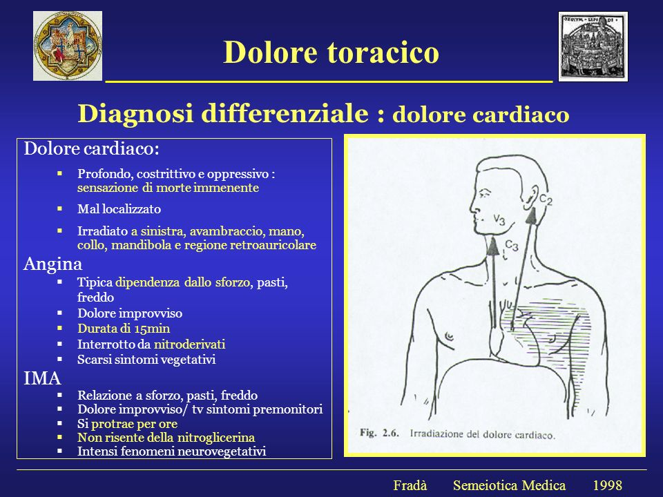 Diagnosi differenziale : dolore cardiaco