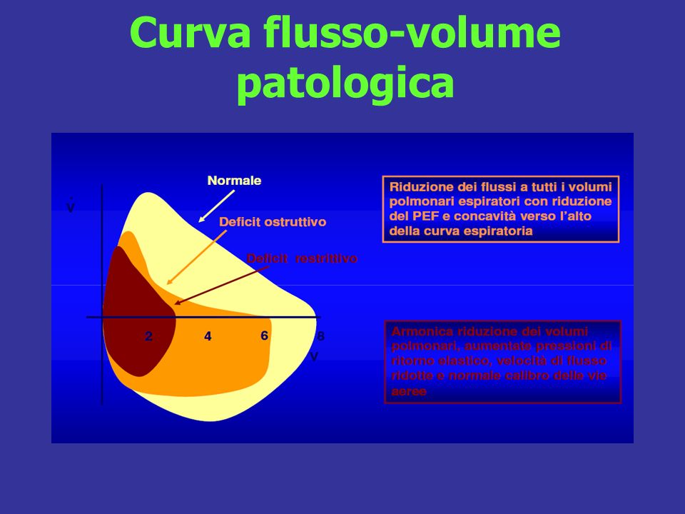 Curva flusso-volume patologica