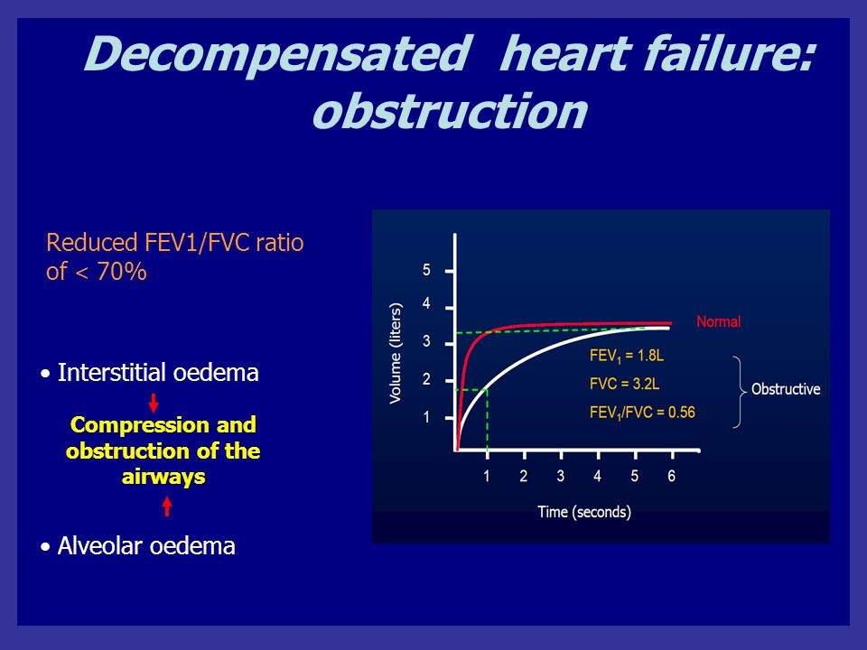 Decompensated heart failure: obstruction