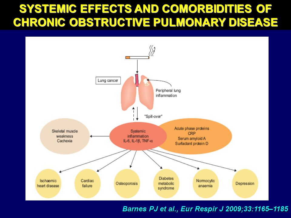 SYSTEMIC EFFECTS AND COMORBIDITIES OF CHRONIC OBSTRUCTIVE PULMONARY DISEASE