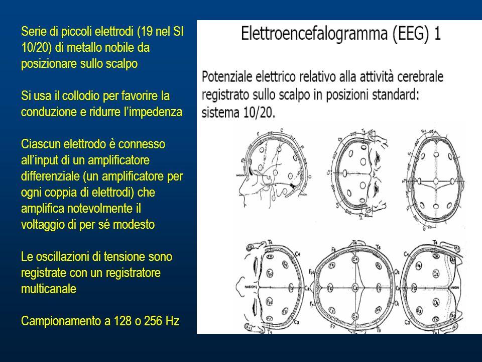 Serie di piccoli elettrodi (19 nel SI 10/20) di metallo nobile da posizionare sullo scalpo