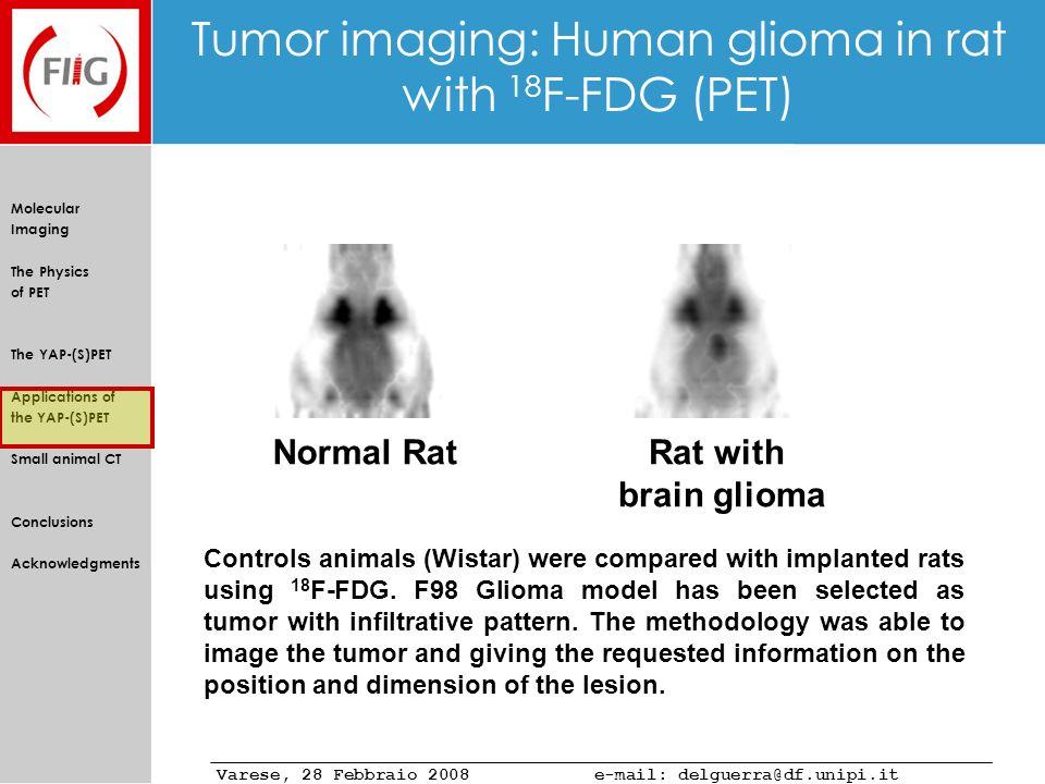 Tumor imaging: Human glioma in rat with 18F-FDG (PET)
