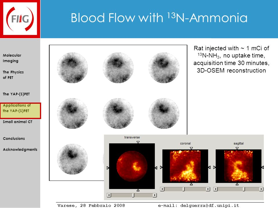 Blood Flow with 13N-Ammonia