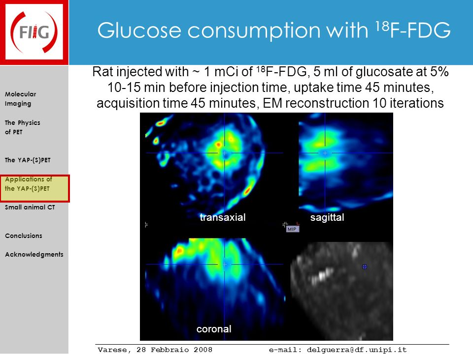 Glucose consumption with 18F-FDG