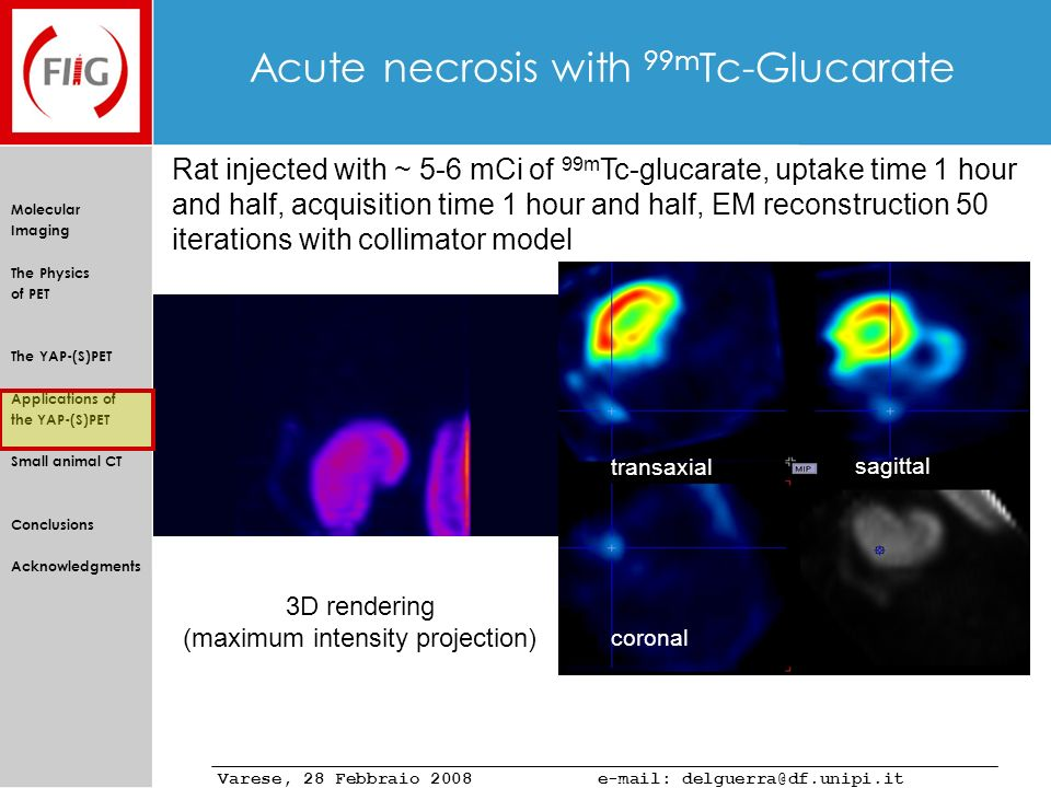 Acute necrosis with 99mTc-Glucarate