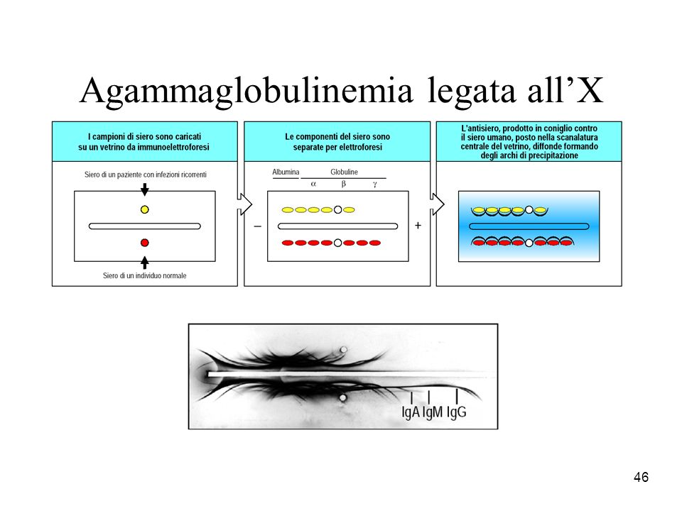 Agammaglobulinemia legata all'X