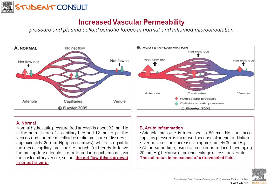 Increased Vascular Permeability