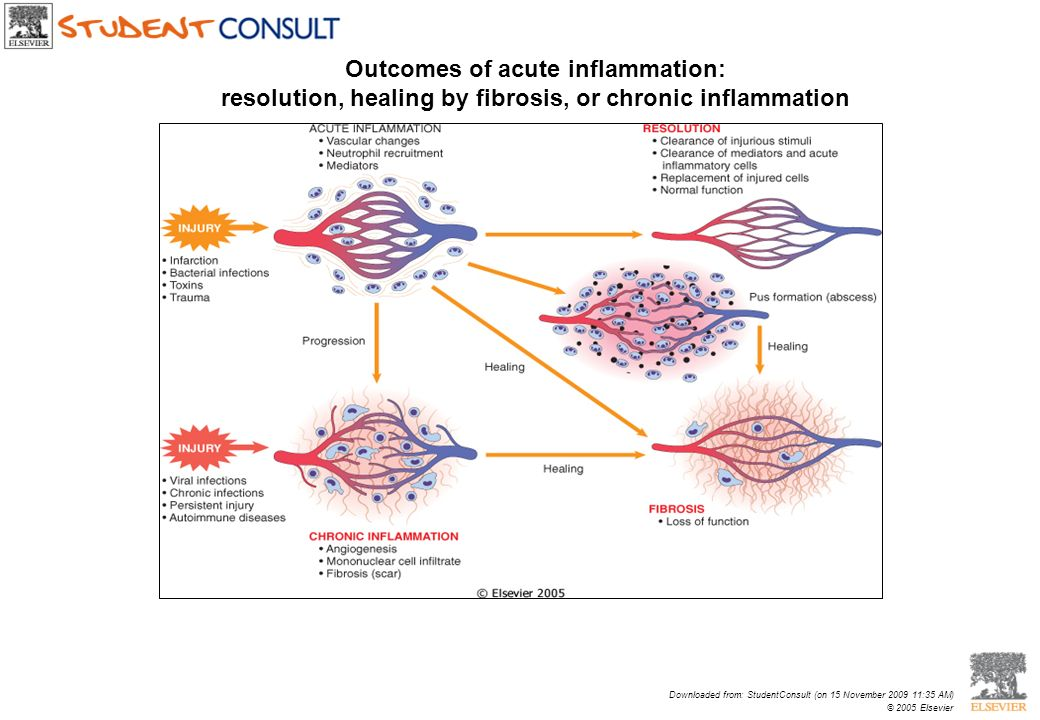 Outcomes of acute inflammation: