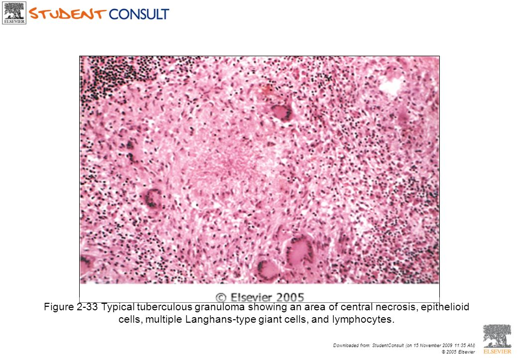 Figure 2-33 Typical tuberculous granuloma showing an area of central necrosis, epithelioid cells, multiple Langhans-type giant cells, and lymphocytes.