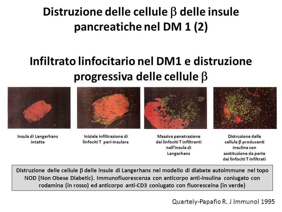 Distruzione delle cellule b delle insule pancreatiche nel DM 1 (2)
