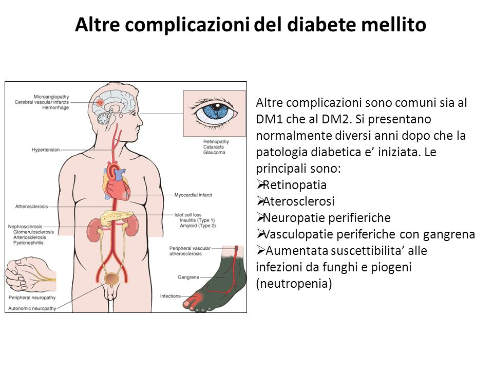 Altre complicazioni del diabete mellito