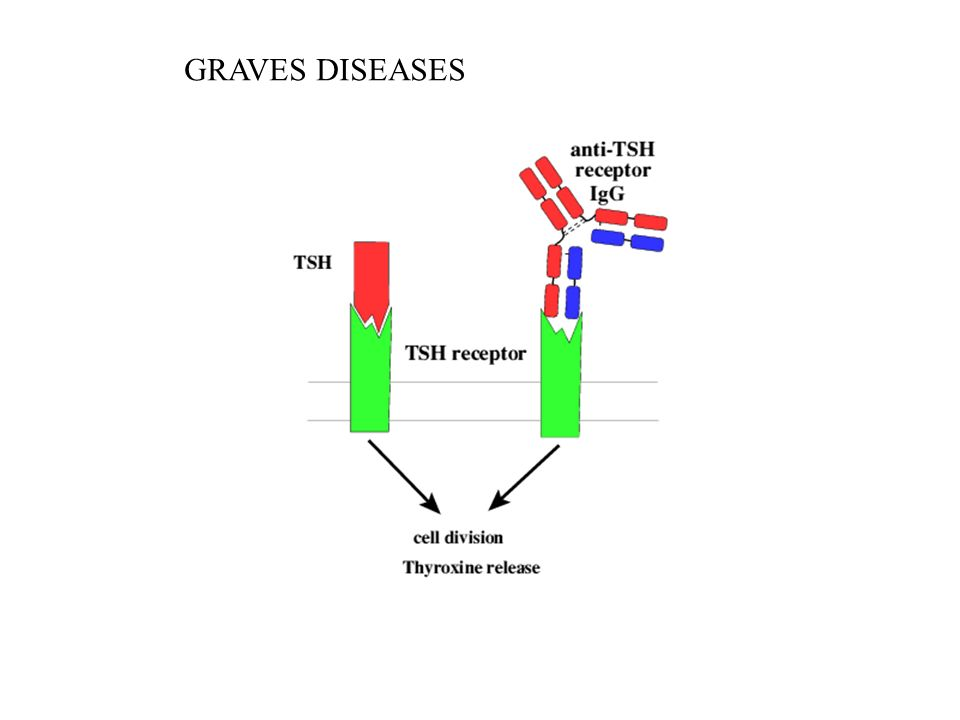 GRAVES DISEASES