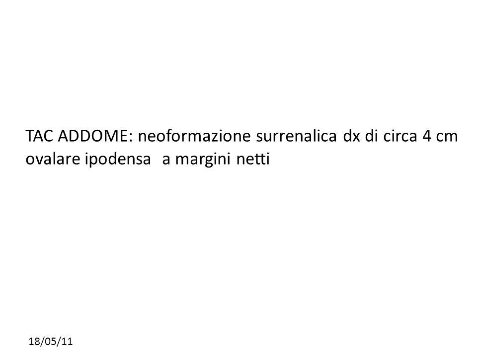 TAC ADDOME: neoformazione surrenalica dx di circa 4 cm ovalare ipodensa a margini netti