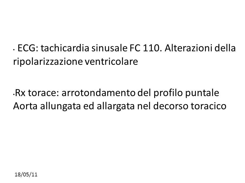 ECG: tachicardia sinusale FC 110