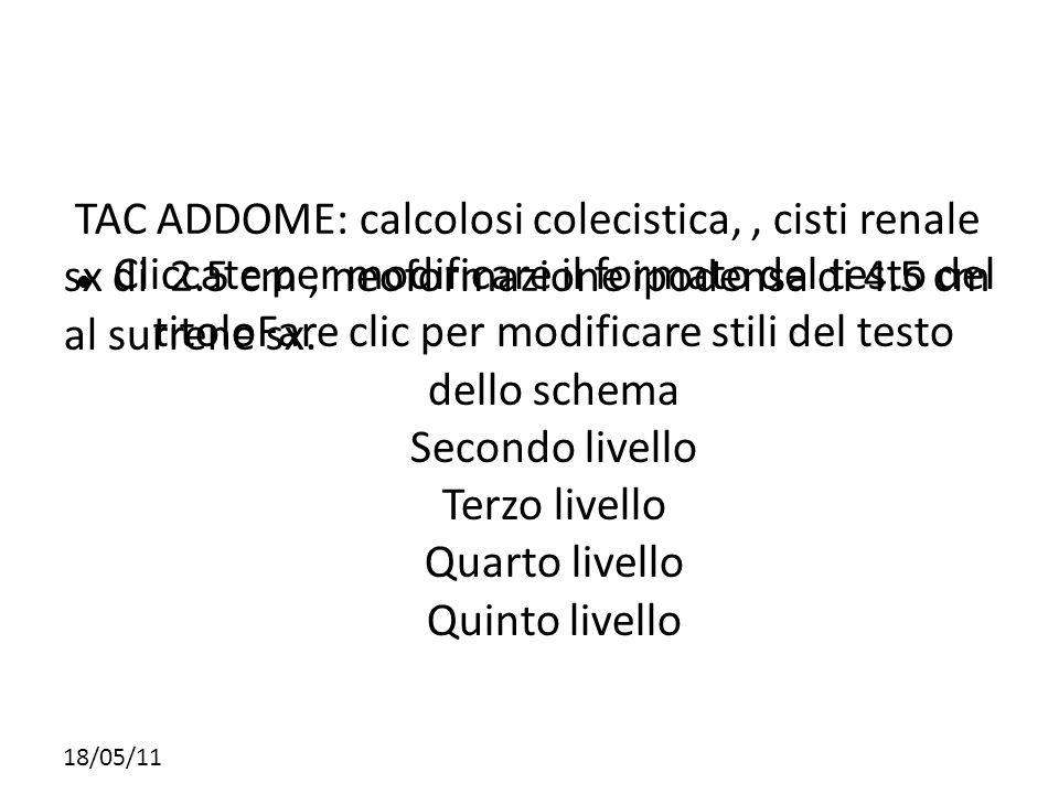 TAC ADDOME: calcolosi colecistica, , cisti renale sx di 2