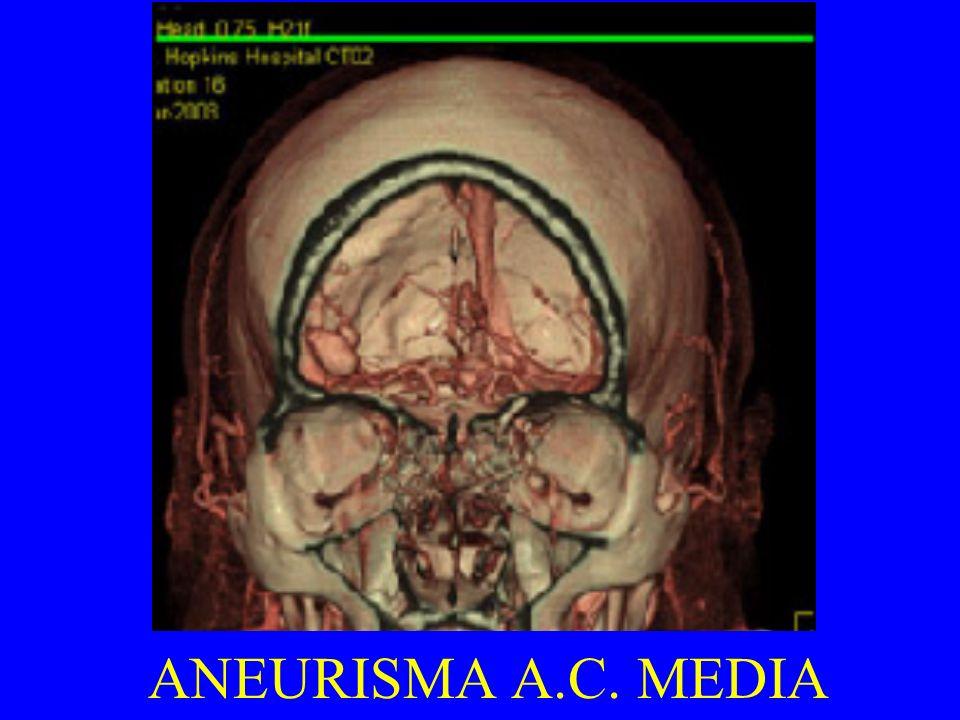 ANEURISMA A.C. MEDIA
