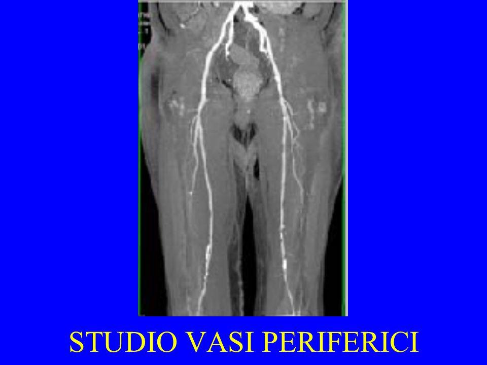 STUDIO VASI PERIFERICI