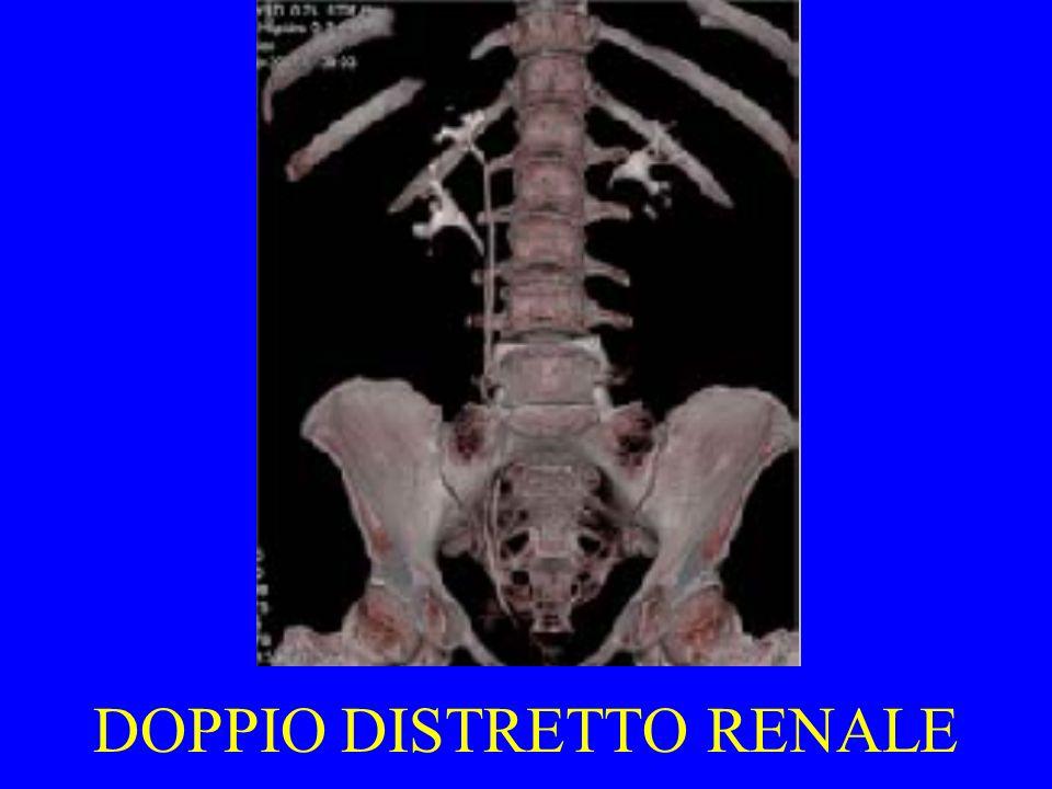 DOPPIO DISTRETTO RENALE