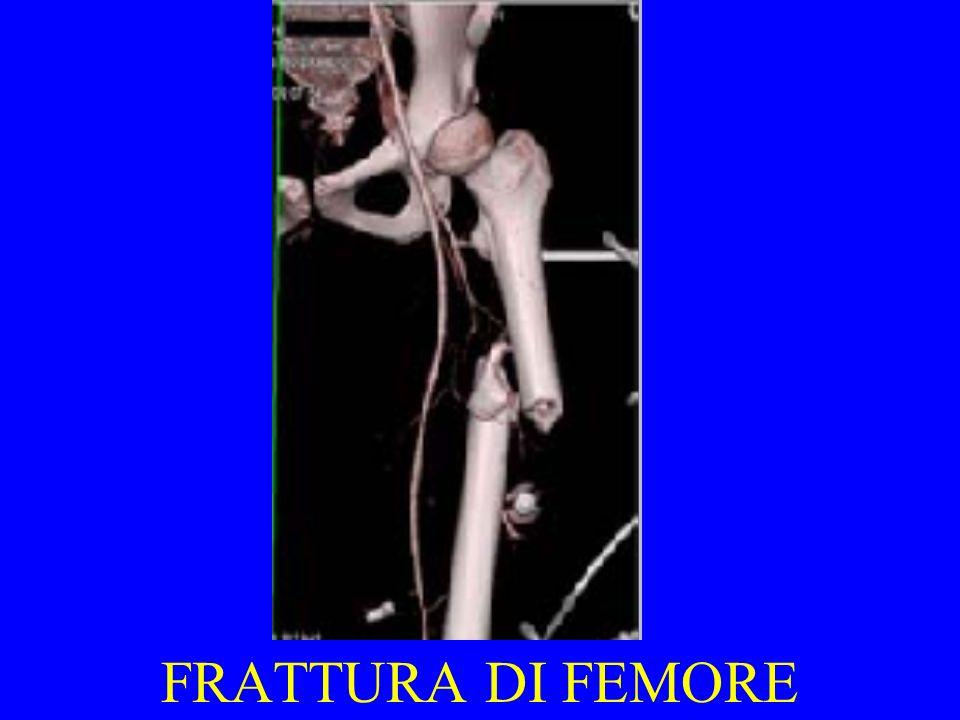 FRATTURA DI FEMORE