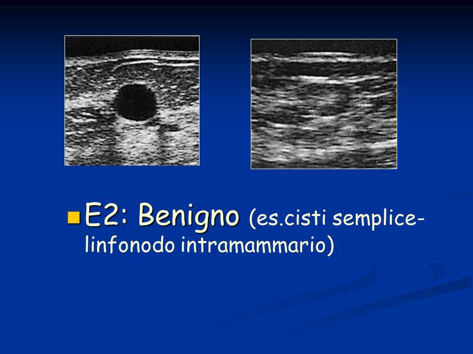 E2: Benigno (es.cisti semplice- linfonodo intramammario)