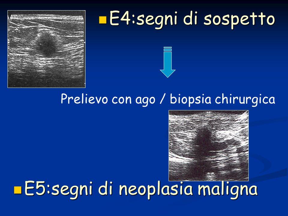 E5:segni di neoplasia maligna