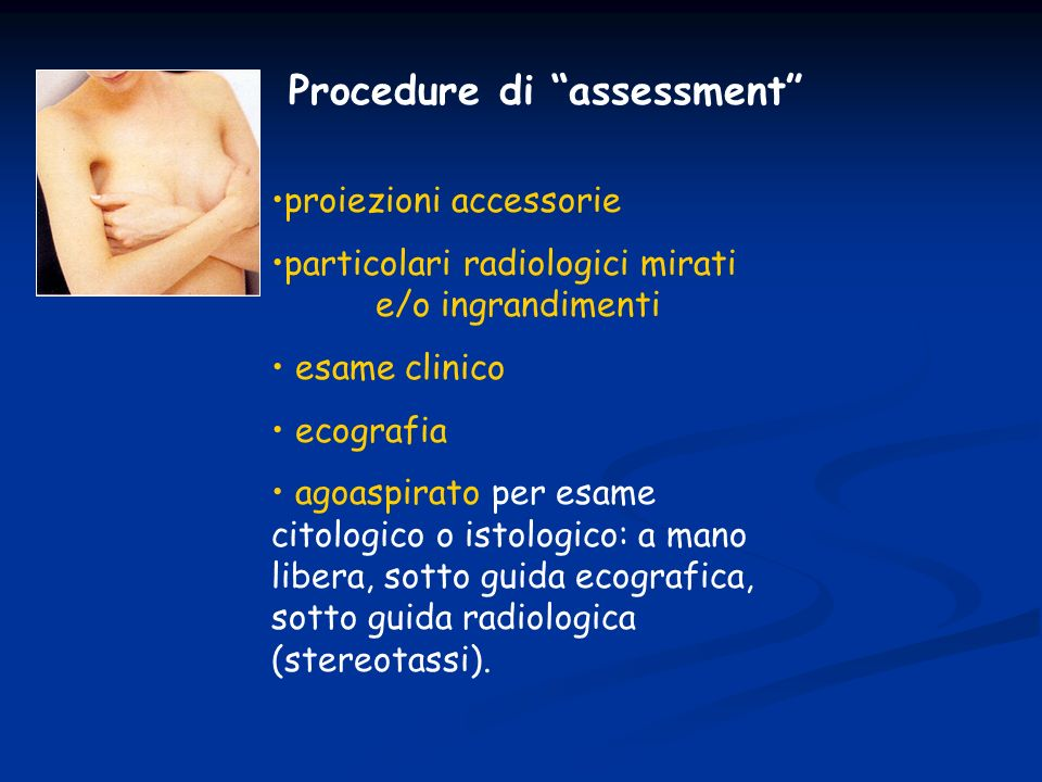 Procedure di assessment