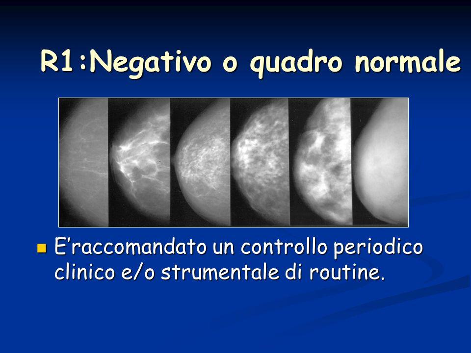 R1:Negativo o quadro normale