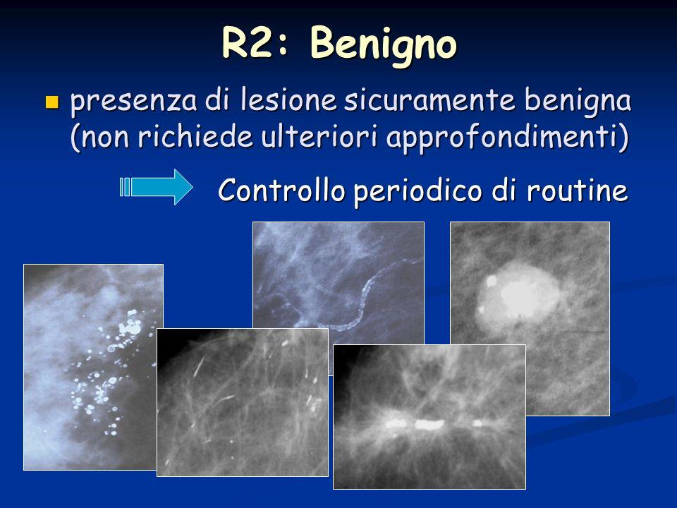 R2: Benignopresenza di lesione sicuramente benigna (non richiede ulteriori approfondimenti) Controllo periodico di routine.
