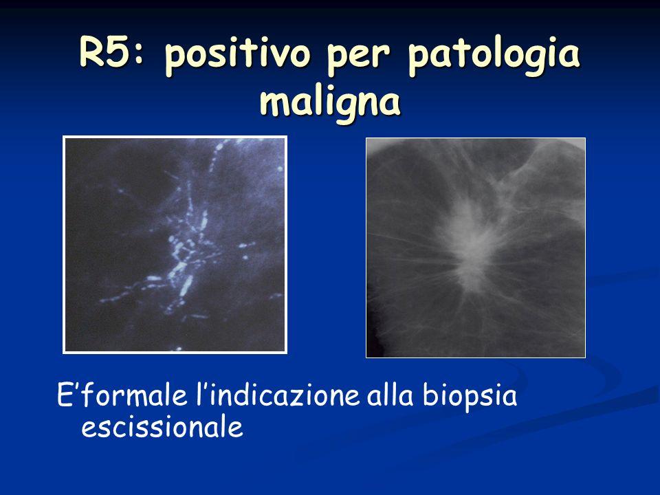 R5: positivo per patologia maligna