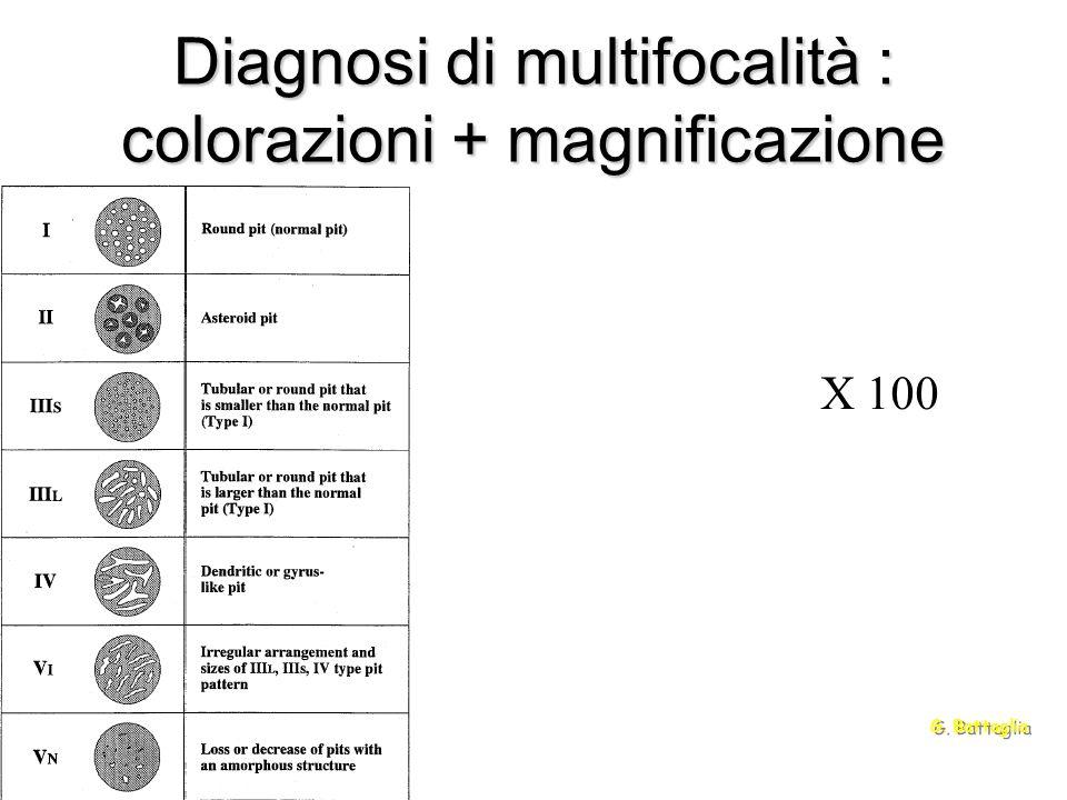 Diagnosi di multifocalità : colorazioni + magnificazione