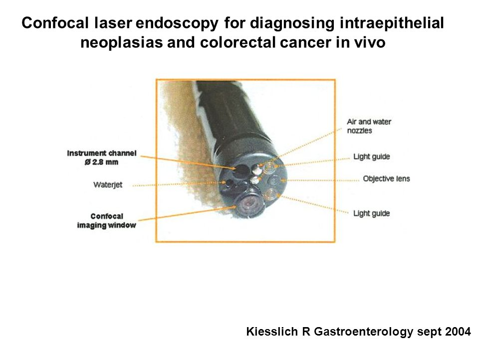 Confocal laser endoscopy for diagnosing intraepithelial neoplasias and colorectal cancer in vivo