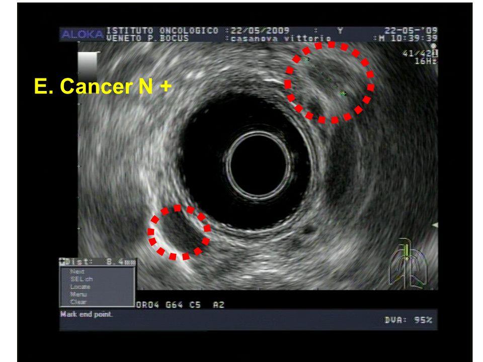 E. Cancer N +
