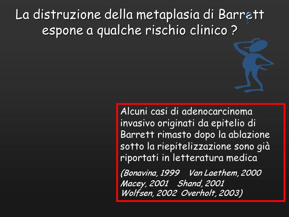 La distruzione della metaplasia di Barrett espone a qualche rischio clinico