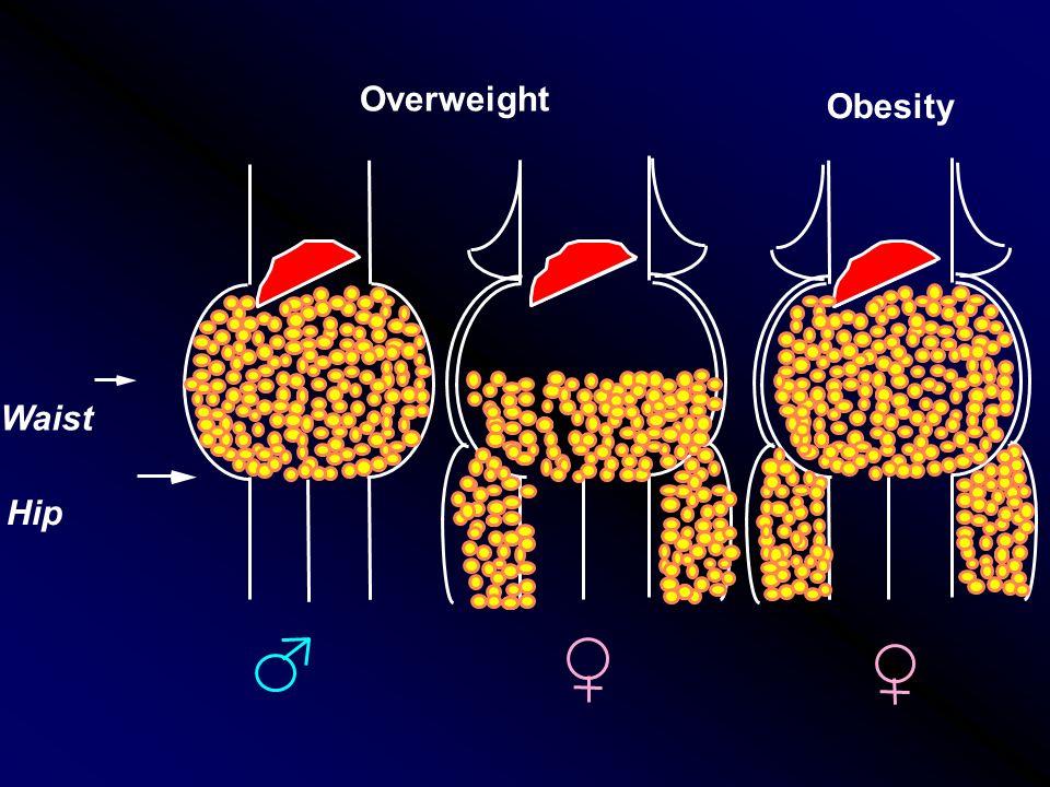 Overweight Waist Hip Obesity