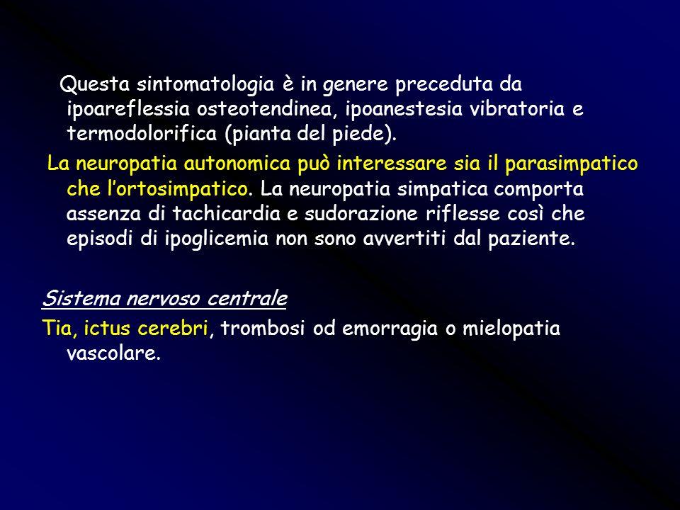 Questa sintomatologia è in genere preceduta da ipoareflessia osteotendinea, ipoanestesia vibratoria e termodolorifica (pianta del piede).