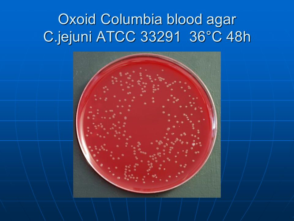 Oxoid Columbia blood agar C.jejuni ATCC 33291 36°C 48h