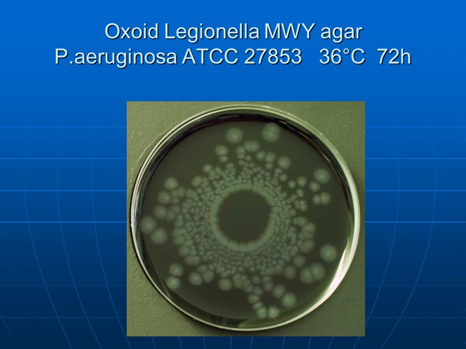 Oxoid Legionella MWY agar P.aeruginosa ATCC 27853 36°C 72h