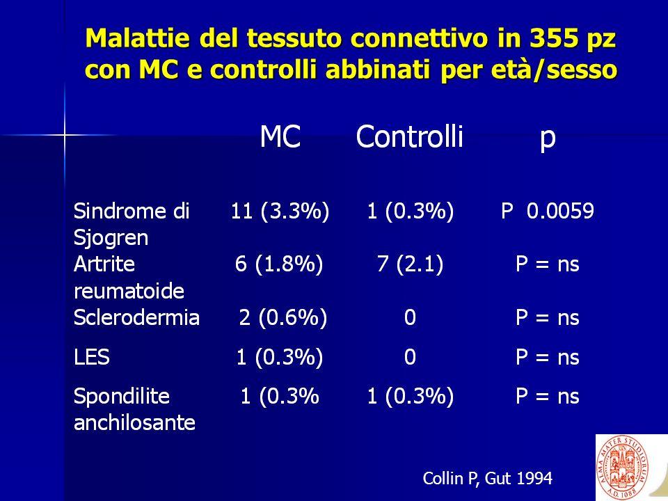 Malattie del tessuto connettivo in 355 pz con MC e controlli abbinati per età/sesso