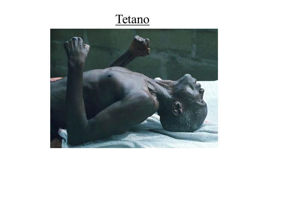 Tetano