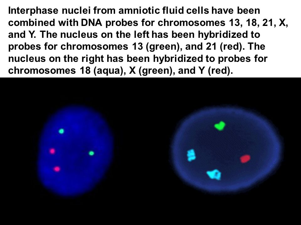 Interphase nuclei from amniotic fluid cells have been combined with DNA probes for chromosomes 13, 18, 21, X, and Y.