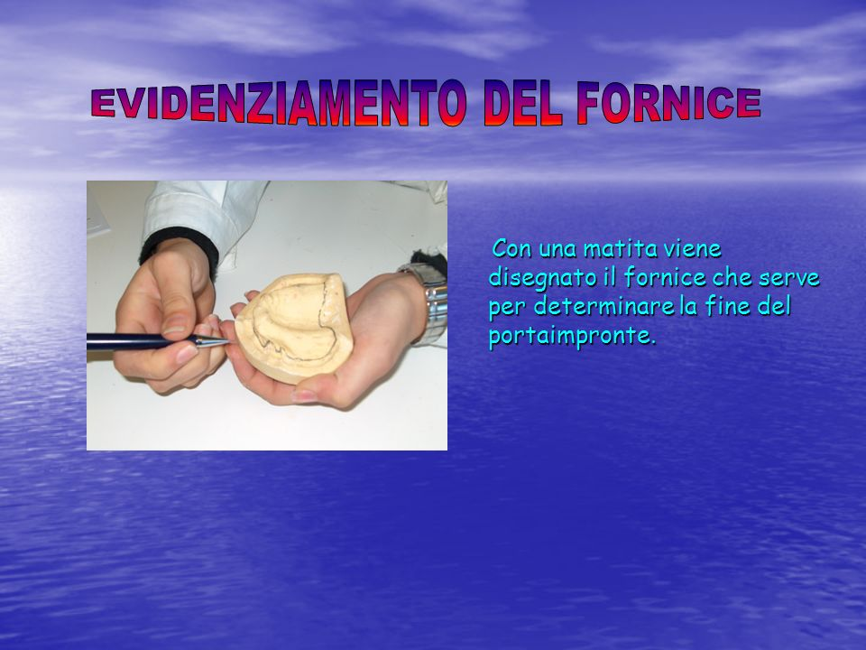 EVIDENZIAMENTO DEL FORNICE