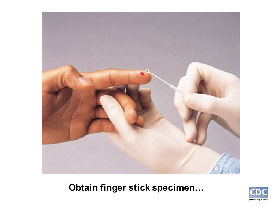 Obtain finger stick specimen…