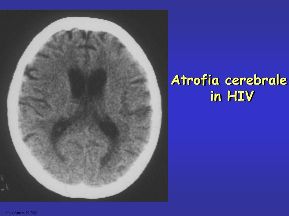 Atrofia cerebrale in HIV